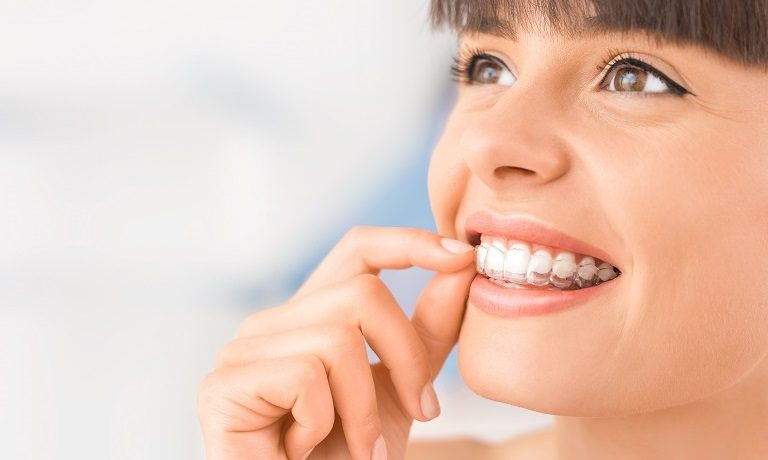 6 Secrets of How to Clean Invisalign Trays