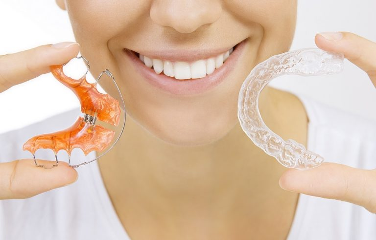 How Long Do I Have to Wear a Retainer?
